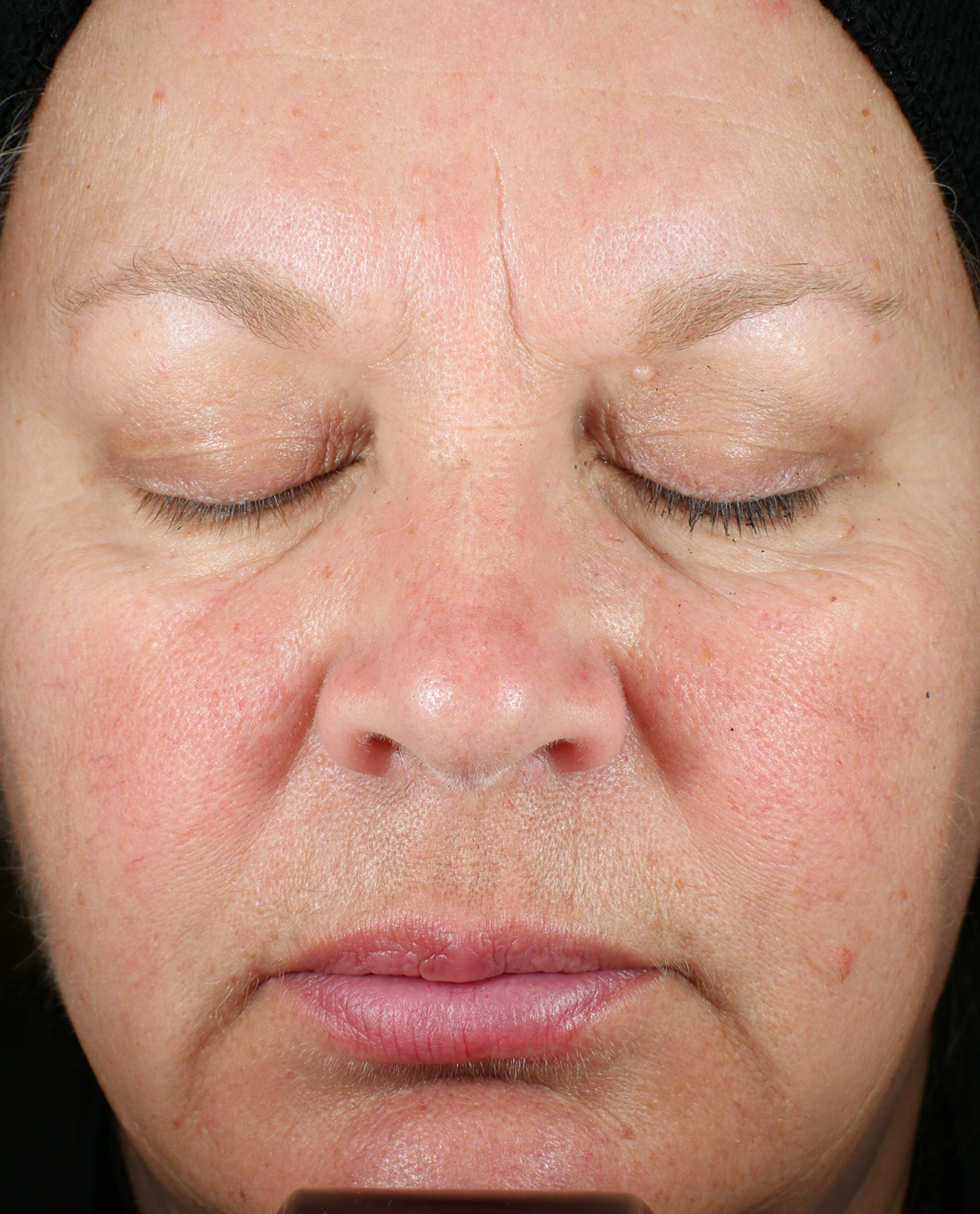 Patient A Before Bio Serum Firm
